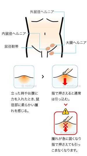 鼠径 靭帯